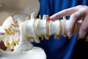 Chiropractic - disc injury